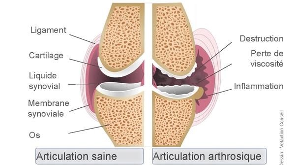 schéma arthrose